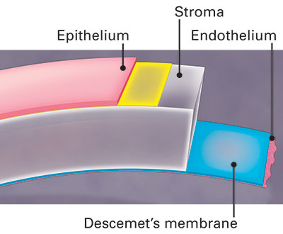 Illustration of the layers that make up the cornea or clear front window of the eye