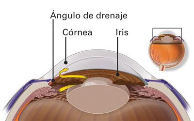 ángulo de drenaje bloqueado - glaucoma