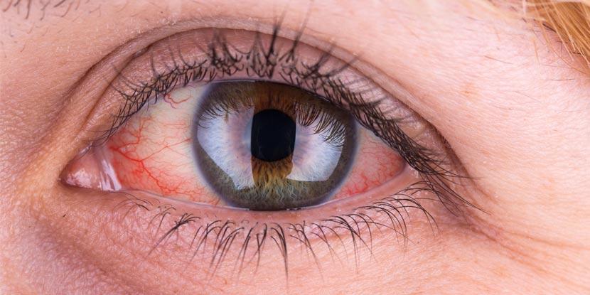 drop for vision fórum aloe és myopia