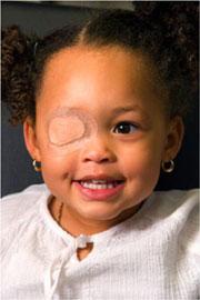 Parche en el ojo de una niña