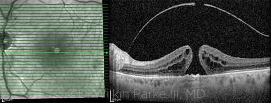 IRIS Registry Mined for Insights - American Academy of Ophthalmology