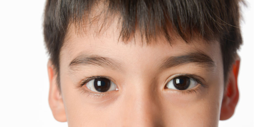 What Is Juvenile Macular Dystrophy American Academy Of Ophthalmology