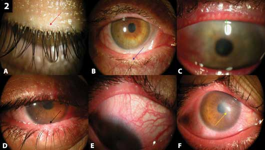 Ocular manifestations of Demodex infestation