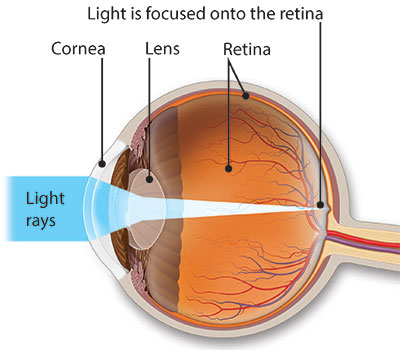 Illustration of an eye with light rays landing squarely on the retina, which means there is no refractive error.