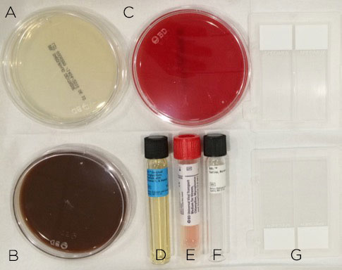 Figure 4. Corneal scraping should be