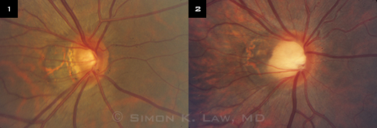 Optic nerve appearance of two highly myopic patients: (1) diagnosed with glaucoma; (2) without glaucoma.