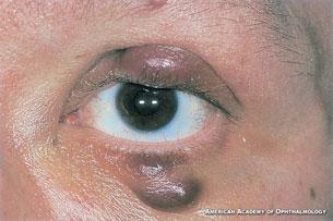 Hiv Symptoms Rash | Pics | Download |