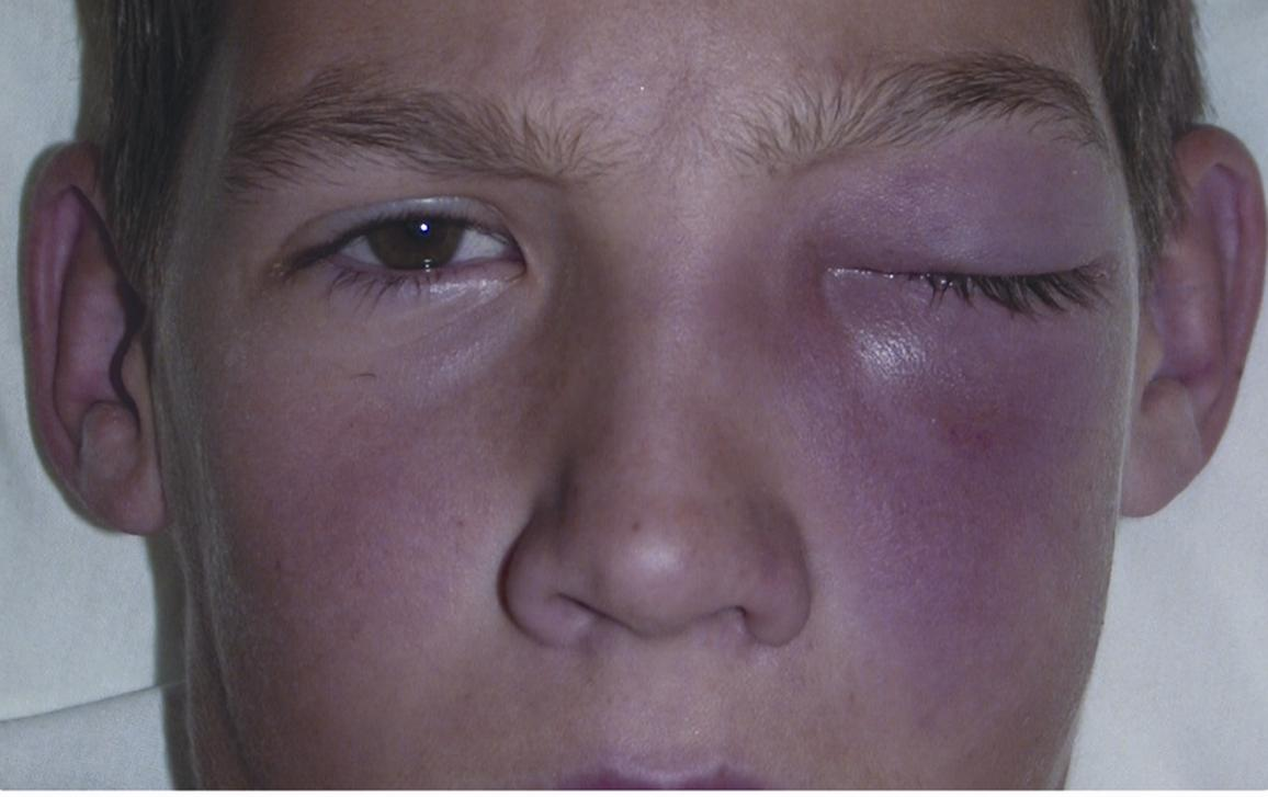 Preseptal or orbital cellulitis - American Academy of Ophtha