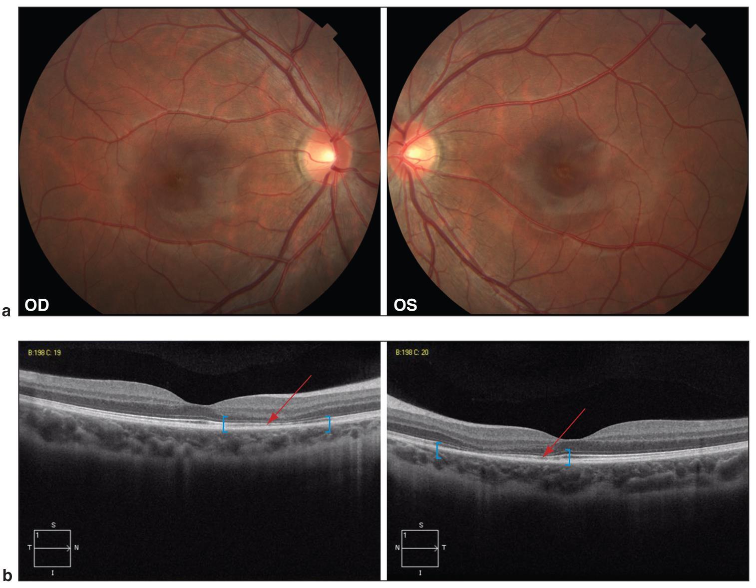 Acute Macular Neuroretinopathy Amnr American Academy