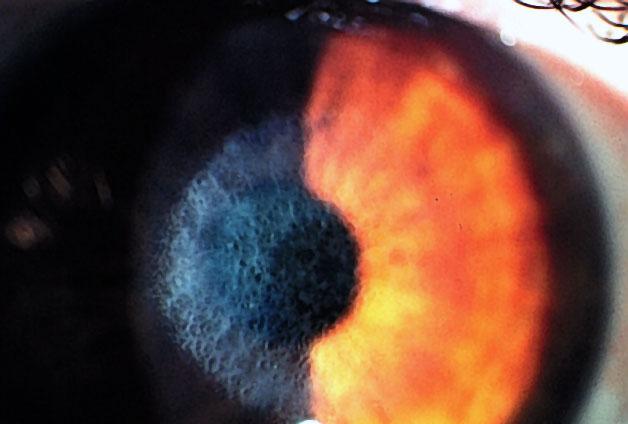 Corneal Haze American Academy Of Ophthalmology