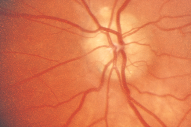 Primary Open-Angle Glaucoma - Asia Pacific - American Academy of