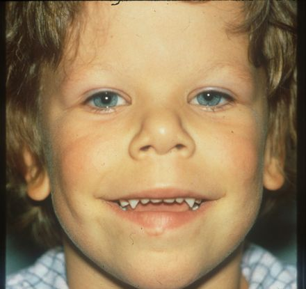 Beroemd Williams Syndrome (Williams-Beuren Syndrome) - American Academy of &LZ03