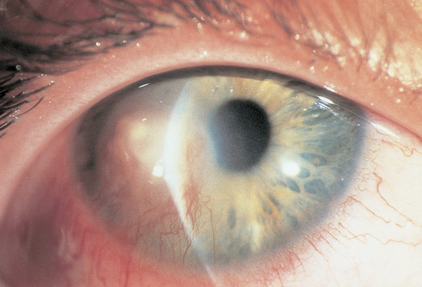 herpes simplex keratitis latin america american