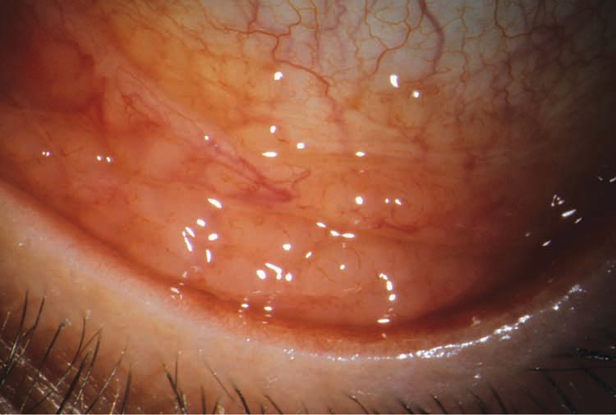 Vitamin A Deficiency - Asia Pacific - American Academy of Ophthalmology