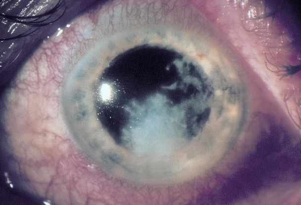 Fungal Keratitis - Asia Pacific - American Academy of Ophthalmology
