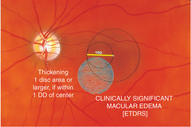 diabetic retinopathy europe american academy of