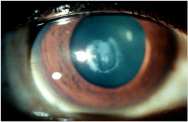 cornea case study View notes - corneal implant case study from bio 201 at arizona state university saloni sinha wednesday 3p corneal implant case study part i- a picturesque day 1.