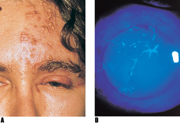 Herpes Simplex Keratitis - Latin America - American Academy of